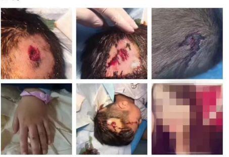 5岁男童熟睡中遭爸爸怀孕女友锤击 伤口深见头骨