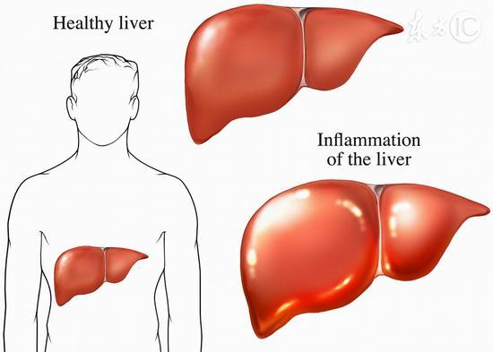 五个信号说明肝脏严重受损