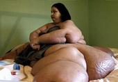1000斤女子减720多斤变这样