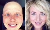 与癌症抗争胜利后他们的变化惊人