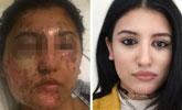 21岁女生遭人泼硫酸严重毁容 4个月后奇迹恢复美貌