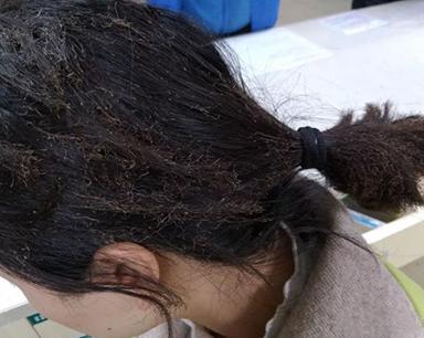 命大!出租房燃气爆炸窗户全震碎 女子只烧到头发