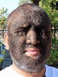 男子患多毛症