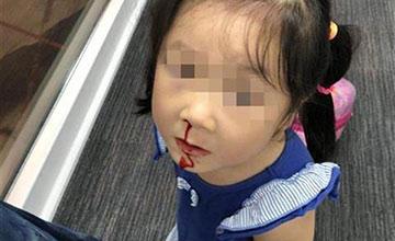 飞机三度起飞失败 女孩被折腾得流鼻血