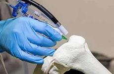 世界首例3D打印腓骨远端(外踝)假体治疗手术实施