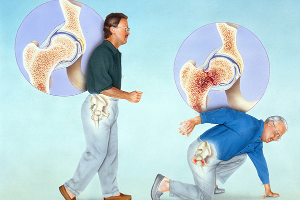"""""""人老骨脆""""并不正常,骨质疏松性骨折如何预防"""
