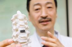 全球首例 西安成功实施3D打印人工颈椎间盘置换术