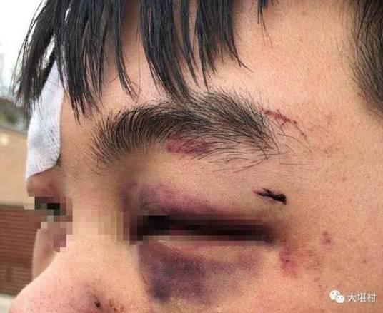 中国留学生在澳遭围殴致失明 报警求助2次被拒