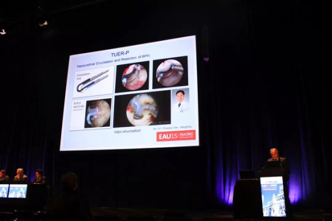 """2015年欧洲泌尿外科年会上,德国J Rassler教授将此手术赞誉为""""世界泌尿外科的重大贡献"""".jpg"""