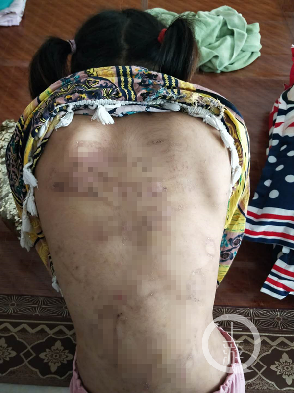 8岁女童疑遭父母虐打遍体鳞伤 警方介入调查