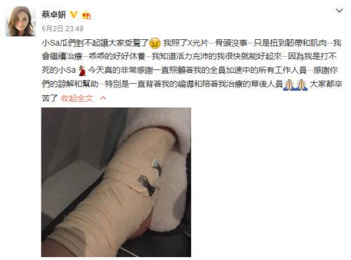 蔡卓妍脚部受伤向粉丝致歉 感谢工作人员照顾【星看点】
