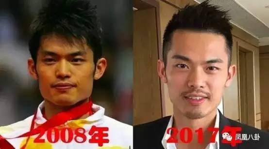 林丹十年大变脸,他才是真正的微整形界之光!(图)