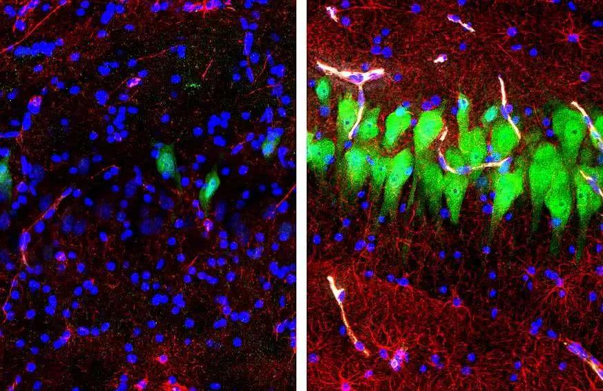 耶鲁大学重磅研究:猪大脑在死亡4小时后复活