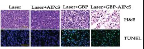 各实验组肿瘤切片的细胞形态(上)与细胞凋亡(下)(图片来源:论文)