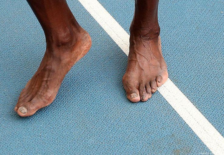 财经资讯_一张图诠释博尔特为何伟大 足弓塌陷双脚满目疮痍_凤凰