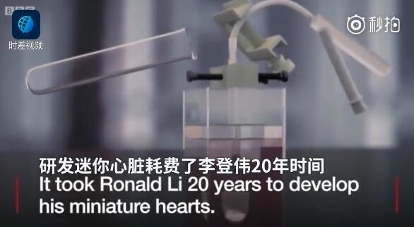 世界首个人造心脏